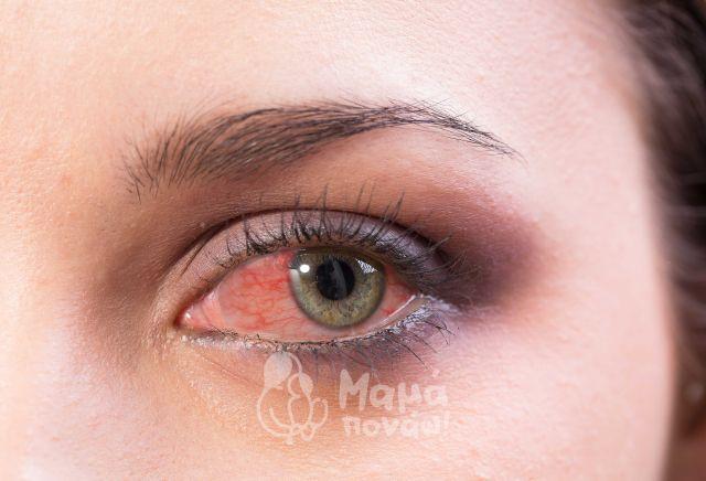 Κόκκινα Μάτια, Ξηροφθαλμία : ΤΙ Μπορεί Να Φταίει Και Ποια η Θεραπεία