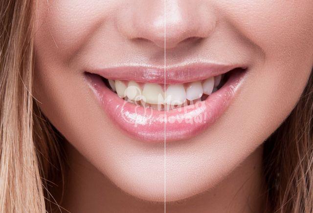 Όψεις Ρητίνης – Bonding Για Νέο Χαμόγελο