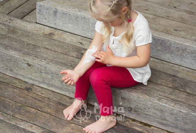 Μάθε Τι Πρέπει Και Τι Δεν Πρέπει Να Κάνεις Στο Παιδικό Έγκαυμα